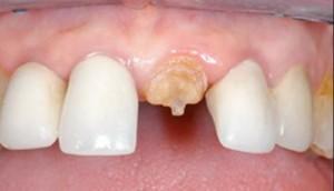 Фото: Коронка на зуб со штифтом