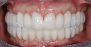 Капы виниры на зубы