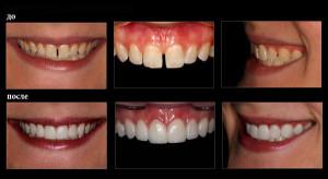 Реставрация передних зубов до и после