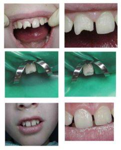 Фото: Реставрация молочных зубов