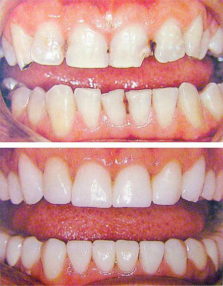 Композитная реставрация зубов - Реставрация зубов композитным материалом: цена, фото до и после