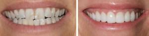 Фото: Как восстановить эмаль зубов?