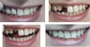 Фото: Какие зубы лучше вставить?