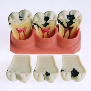 Скрытый кариес зуба: лечение, симптомы, стадии и профилактика
