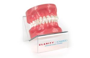 Брекеты Clarity Clarity Advanced - цена на установку, описание в ортодонт-центре Студия Улыбки