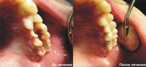 Зубы с кариесом как вылечить все