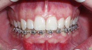 Фото: Выравнивание зубов нижней челюсти