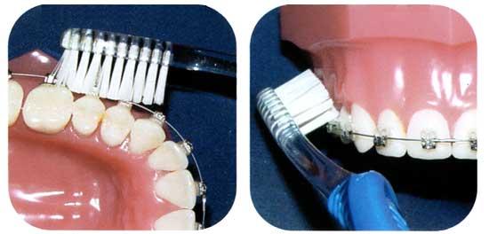 чем виниры отличаются от коронок зубных