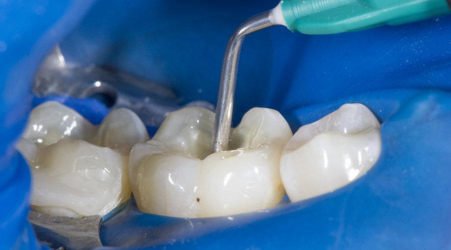 обработка зубного канала адгезивом