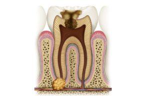 Фото: Гранулема зуба