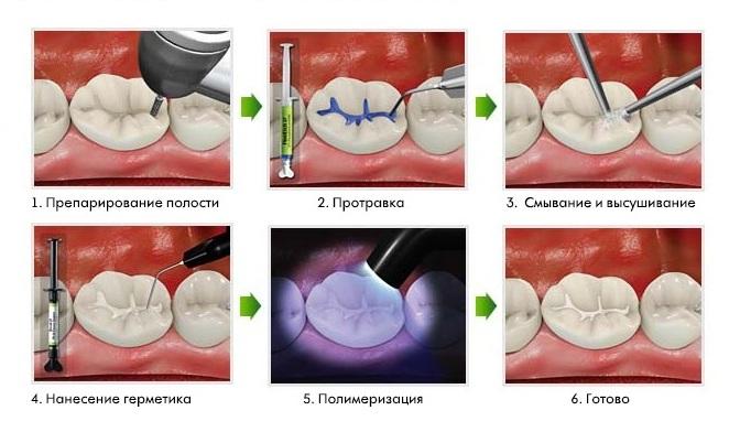Методы лечения кариеса молочных зубов реферат 245