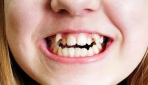 Фото: Неровные зубы у ребенка