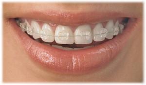 Сколько нужно носить брекеты взрослым и детям чтобы выровнять зубы, минимальный срок ношения