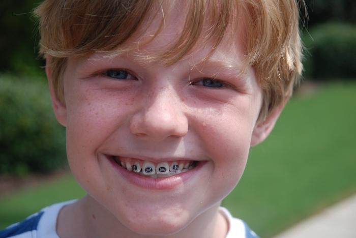 Брекеты для детей — когда лучше ставить зубные конструкции ребенку
