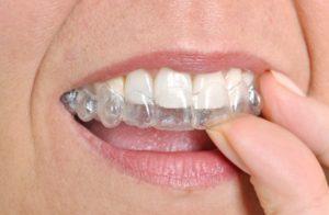 Фото: Незаметность на зубах