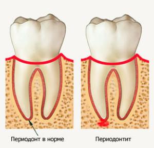 Симптомы периодонтита— признаки заболевания зубов