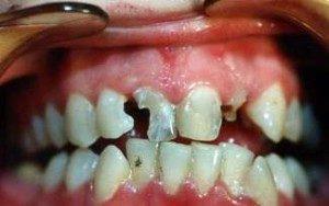 Фото: Сильное разрушение зубов