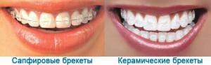 Сапфировые брекеты в Москве. Установка сапфировых брекетов. Сапфировая брекет система: цена, преимущества.