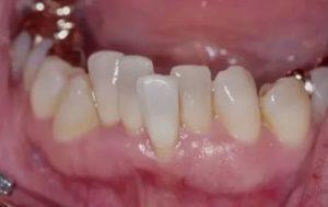 Фото: Скученность зубов