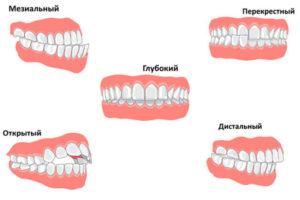Фото: Виды патологий зубов