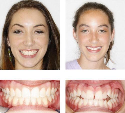 накладные зубы смайл