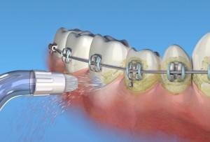 Обзор лучших ирригаторов ортодонтических