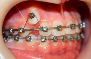 Фото: Расширение челюсти