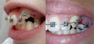 Подпиливание зубов - фото до и после, для чего подтачивают клыки детям?
