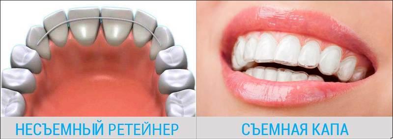 Зубы после брекетов, после снятия брекетов что дальше делают?