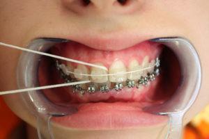 Фото: Гигиена рта