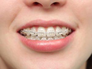 Фото: Соответствие цвету зубов