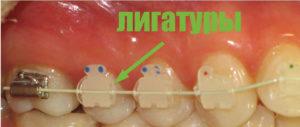 Фото: Эффективность лечения