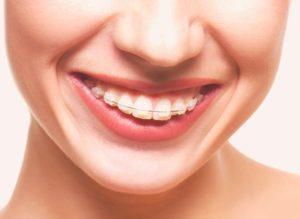 Фото: Коррекция верхней челюсти