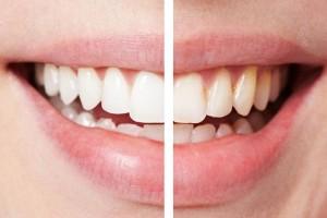 Как отбелить брекеты и зубы после снятия системы?