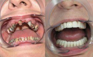 Фото: Отсутствие зубов