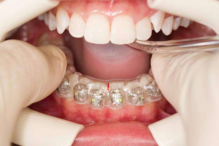 накладная челюсть на зубы