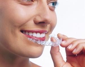 Для выравнивания зубов силиконовые