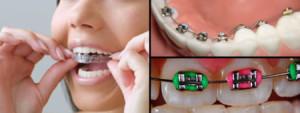 Прозрачные брекеты: как называются незаметные скобы на зубы, фото
