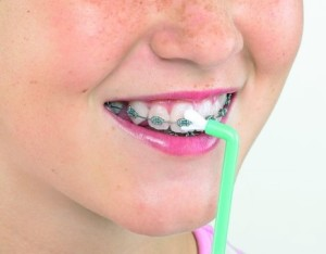 Зубы все в пломбах брекеты