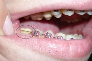 Какие коронки лучше ставить на жевательные зубы – отзывы, цена