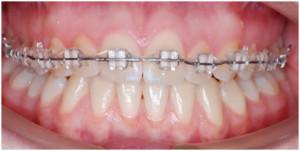Можно ли ставить брекеты только на верхнюю челюсть? — Про исправление прикуса и брекеты