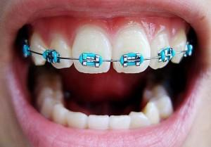 Что делать если отклеился брекет замок на последнем зубе — проглотил дугу от брекетов что делать?