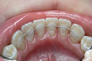 Дуга на зубах после брекетов