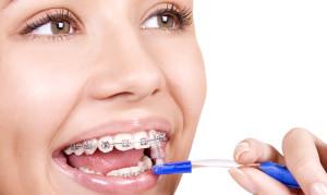 Как правильно ухаживать за брекетами и зубами после установки брекетов?
