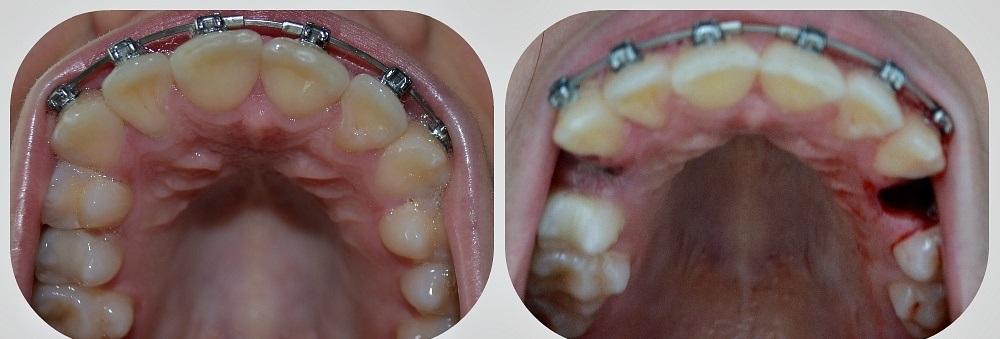 Брекеты чтобы исправить один зуб