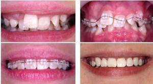 Как сделать брекет для зубов 277