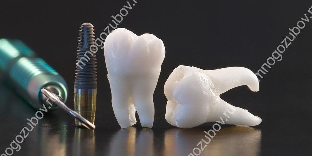 Имплантация зубов – это больно или нет?
