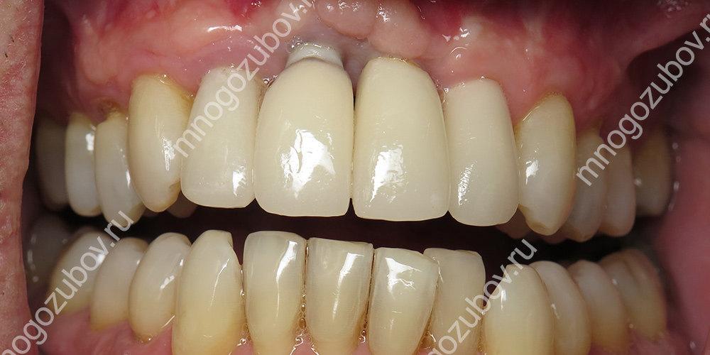 По каким причинам отторгается зубной имплант