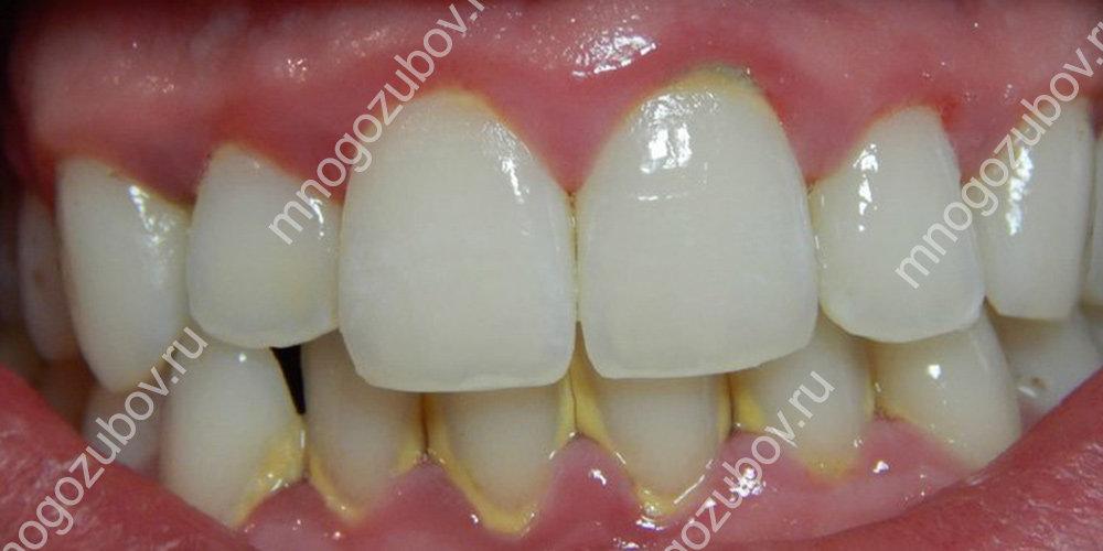 Фото: Зубной камень
