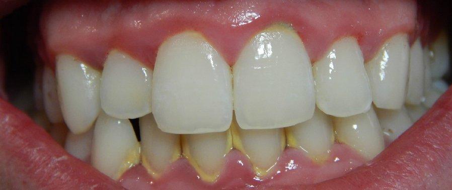 Чем зубной налет отличается от зубного камня